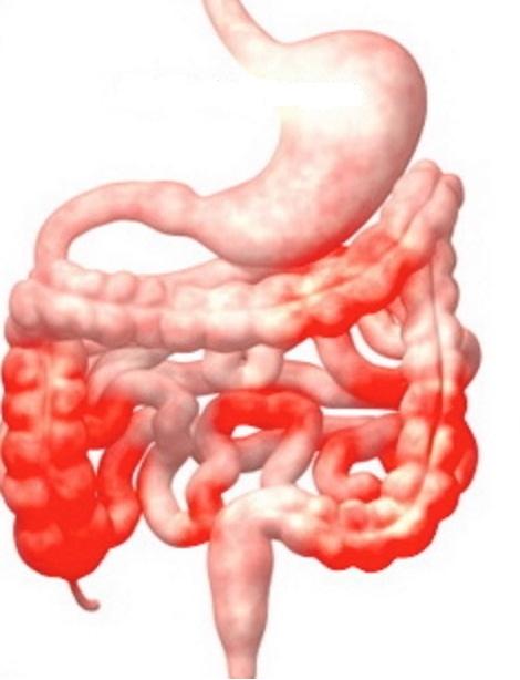 Bệnh Crohn là gì?