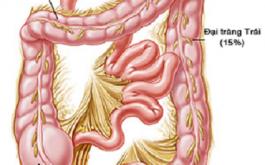 cách phòng ngừa bệnh viêm đại tràng