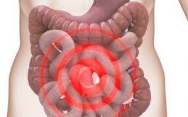 điều trị hội chứng ruột kích thích bằng bài thuốc quý