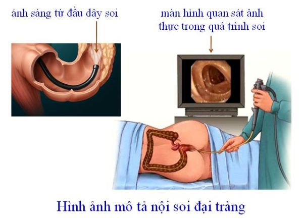 nội soi đại tràng 1