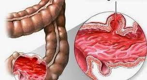 Điều trị bệnh viêm loét đại trực tràng chảy máu