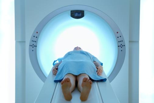 Nguyên nhân viêm trực tràng do xạ trị ung thư