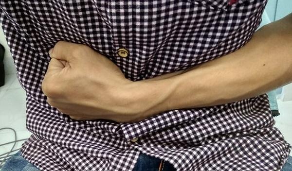 Đau có phải là triệu chứng của viêm đại tràng co thắt?