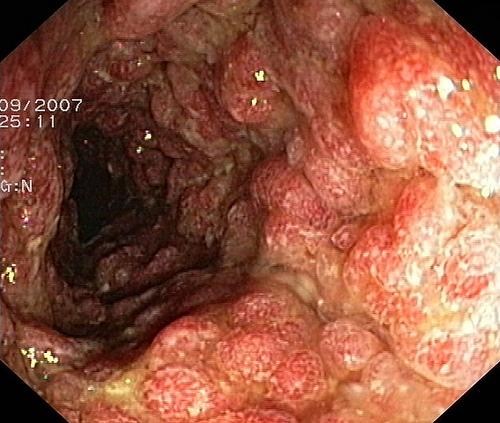 Hình ảnh nội soi ung thư đại tràng