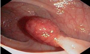 Hình ảnh bệnh polyp trực tràng