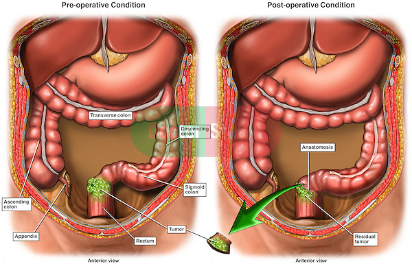 Surgery for Colon and Rectal Cancer.