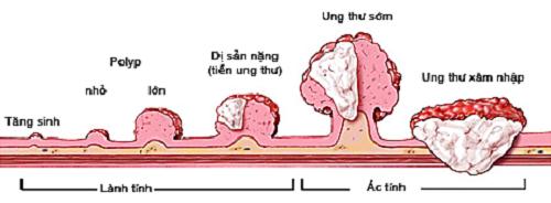 thuoc-dong-y-chua-benh-ung-thu-dai-trang1