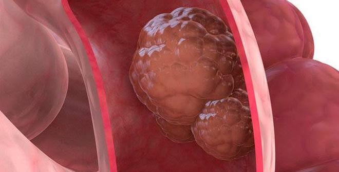 Bệnh ung thư đại tràng có chữa được không?