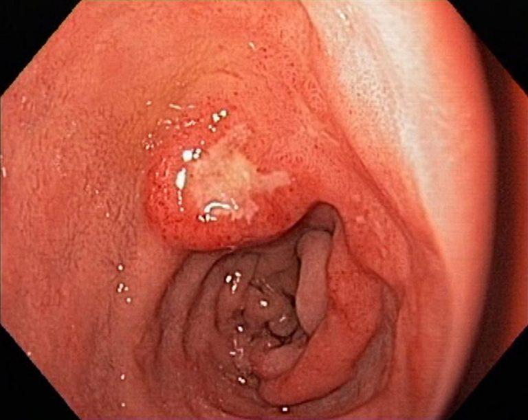 ăn xong bị đau bụng đi ngoài do viêm loét dạ dày