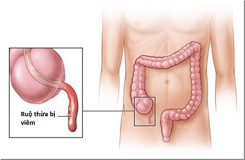 Ăn xong bị đau bụng đi ngoài do viêm ruột thừa