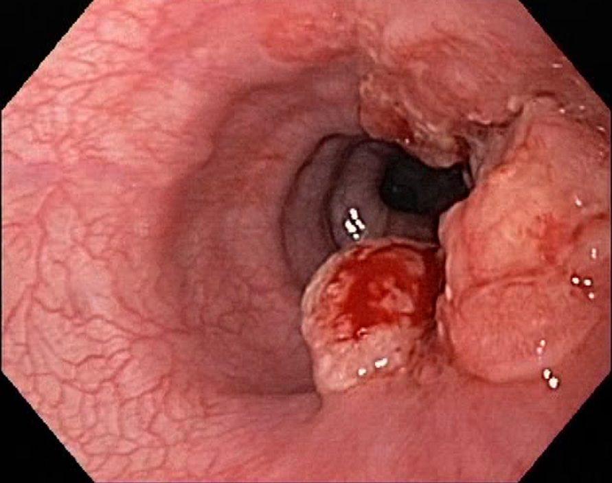 Biến chứng nguy hiểm của bệnh viêm loét đại tràng