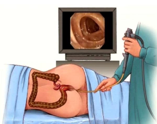 nội soi trực tràng ống mềm