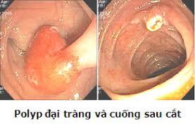 Gốc polyp đại tràng trước và sau khi cắt bằng nội soi