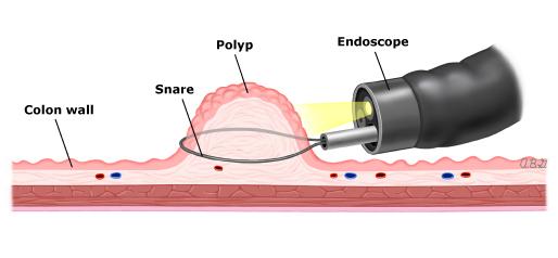 Quy trình thực hiện cắt polyp đại tràng qua nội soi
