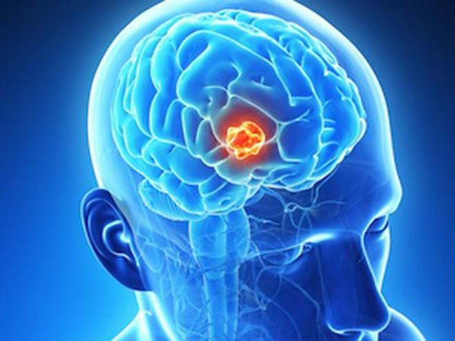 Ung thư đại tràng di căn não