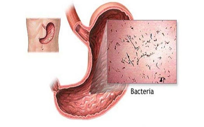 Cúm dạ dày là nguyên nhân gây đau bụng thường gặp