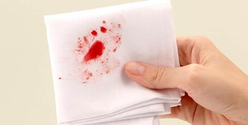 Phân biệt bệnh sa trực tràng và trĩ qua triệu chứng chảy máu