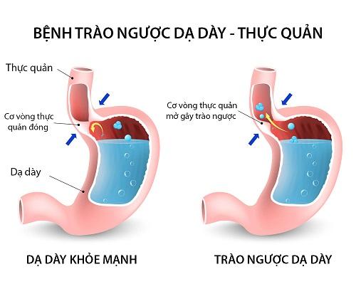 Trào ngược dạ dày thực quản là nguyên nhân gây đau bụng