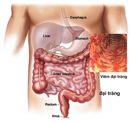Viêm đại tràng là nguyên nhân gây đau bụng phổ biến nhất