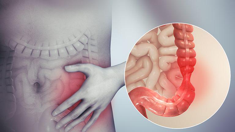 Viêm đại tràng co thắt là bệnh lý không thể coi thường