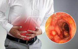 Viêm đại tràng mãn tính gây ra nhiều ảnh hưởng xấu tới sức khỏe